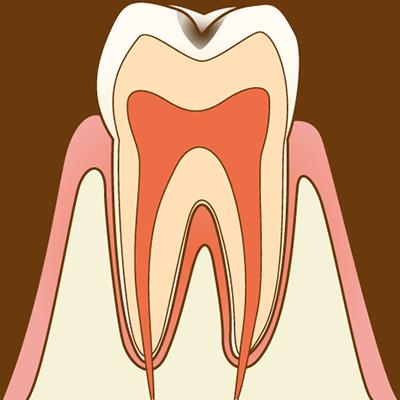 【C1 エナメル質の虫歯】