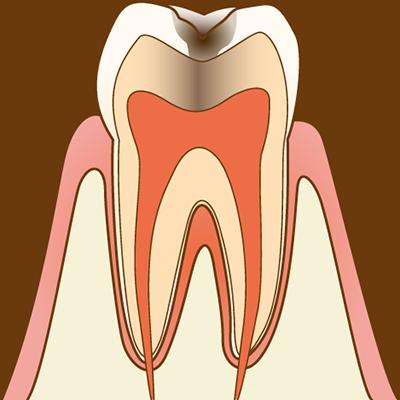 【C2 象牙質の虫歯】