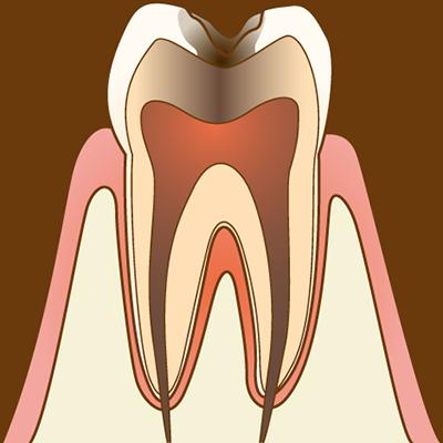 【C3 神経に達した虫歯】